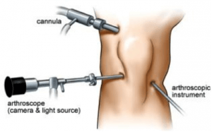 arthroscopic procedure knee scope